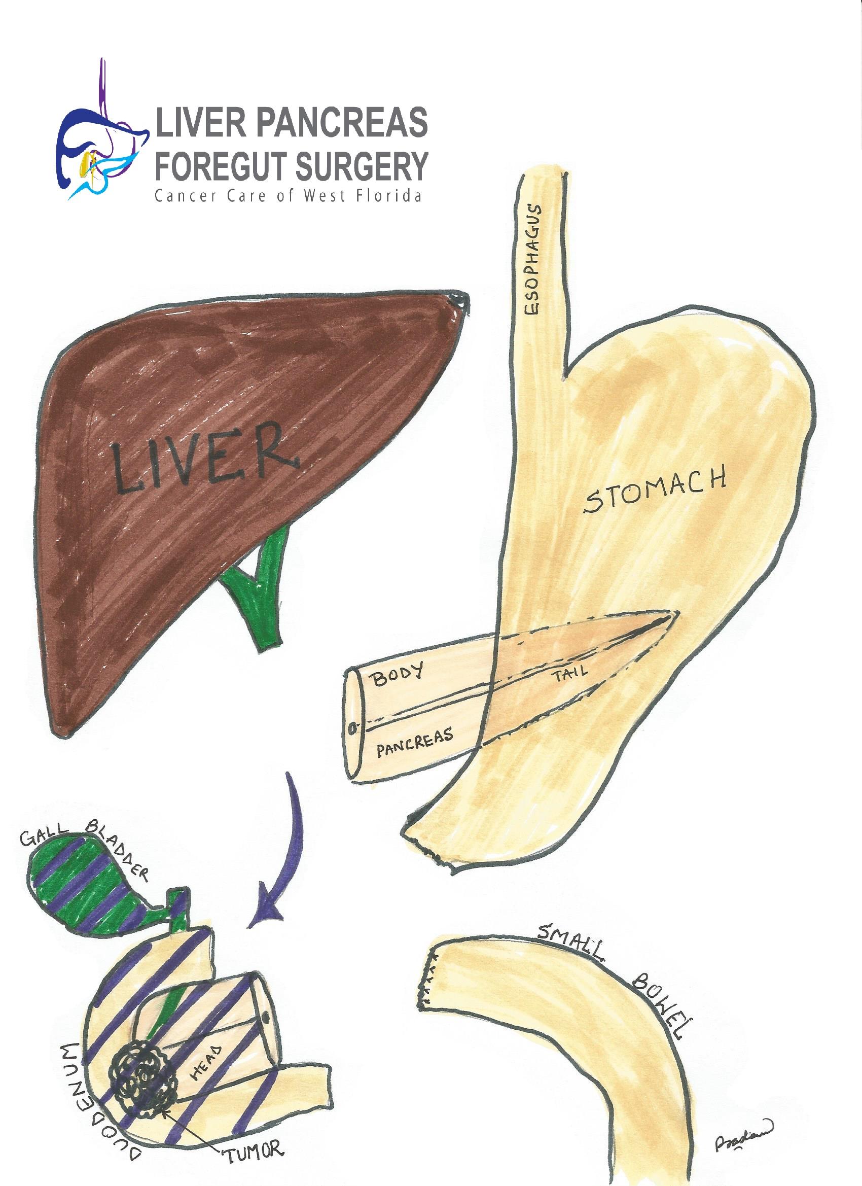 Pancreatitis treatment, Pancreas Surgery Tampa Florida | Liver Pancreas