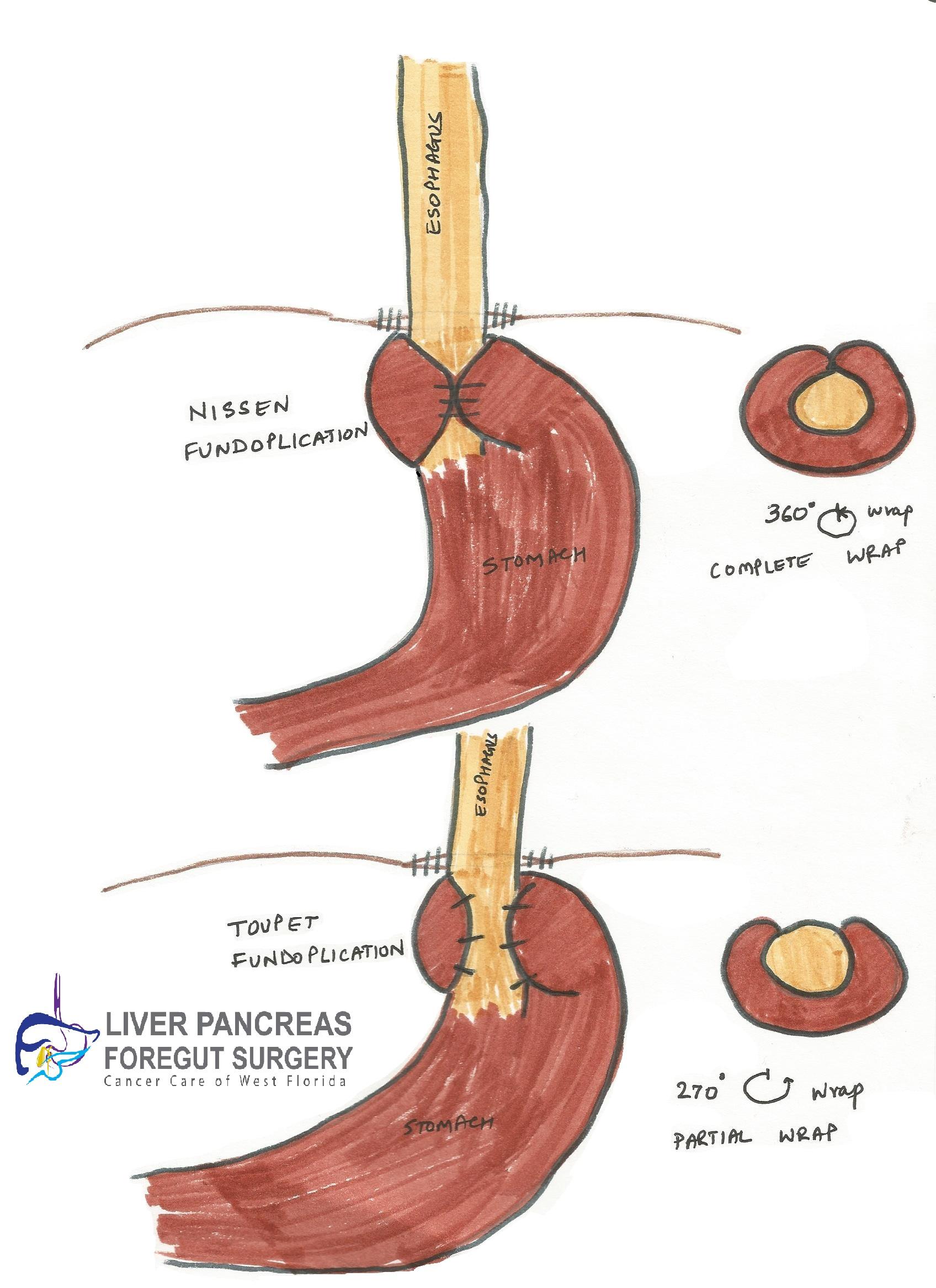 GERD Surgery Florida, GERD Treatment   Liver Pancreas